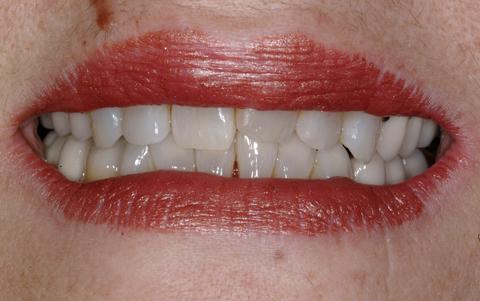 Dental Services in Bellevue, WA | Rosario P  Palacios, DDS